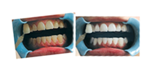 Teeth Whitening Glasgow